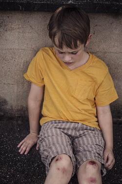 Kelly Sillaste HURT LITTLE BOY WITH BLOODY KNEES Children