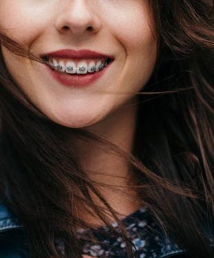 Nina Masic SMILING WOMAN WITH TEETH BRACE Women