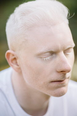 Jovana Rikalo Portrait of albino young man with eyes closed