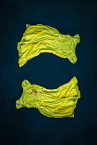 Natasza Fiedotjew TWO YELLOW DRESSES AND BLOODSTAINS